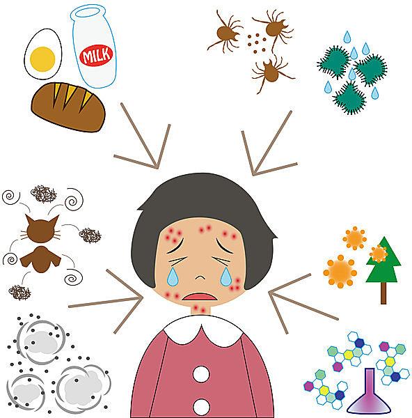 アレルギーの原因「アレルゲン」はさまざま