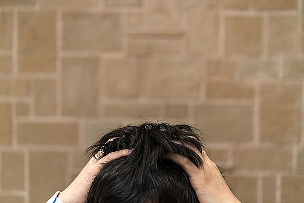 頭皮は顔の3倍の紫外線をあびている!  これからの季節こそ、きちんとケアして抜け毛予防を!