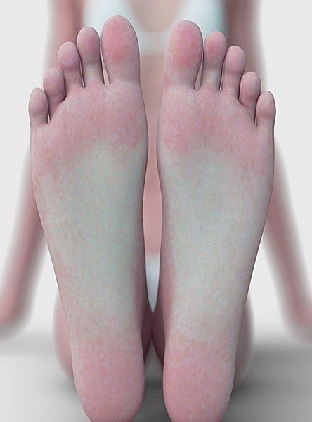 体調をセルフチェックできる 足裏観察法 あなたの足裏はどんな色