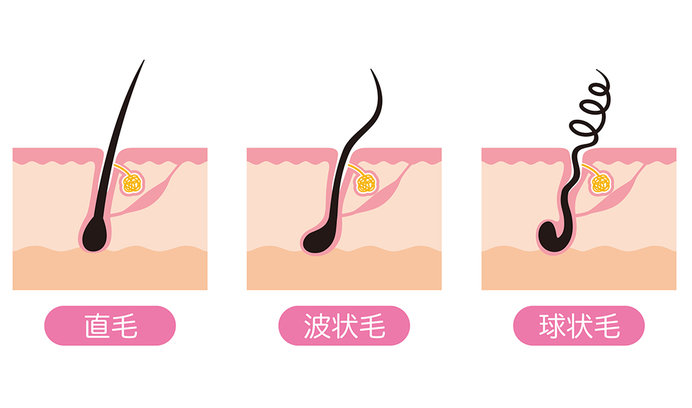 その特性・形をもった状態で毛根から生えてくるくせ毛